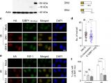Kim Hotstart Wiring Diagrams Crispr Cas9 Fusion to Dominant Negative 53bp1 Enhances Hdr and